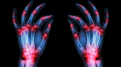 01.What-is-Rheumatoid-Arthritis