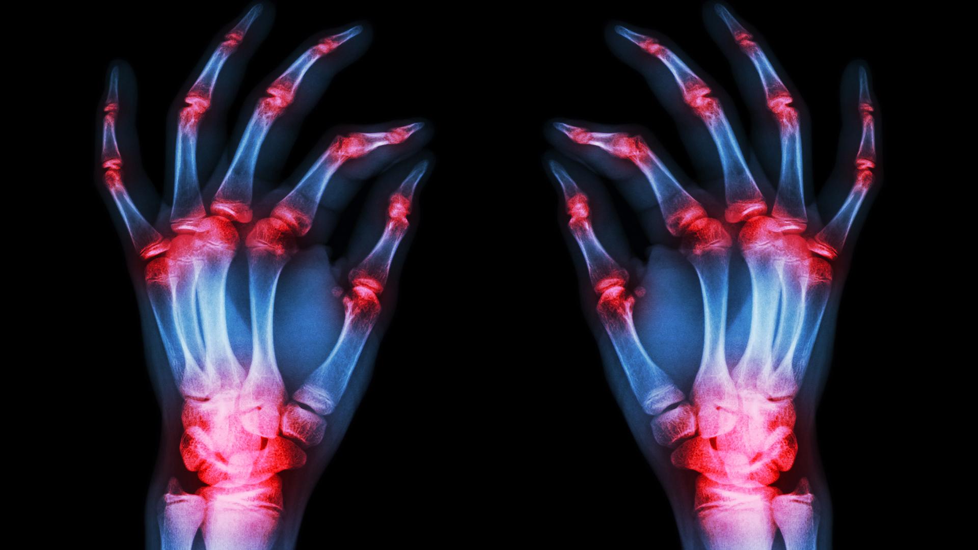01.What-is-Rheumatoid-Arthritis