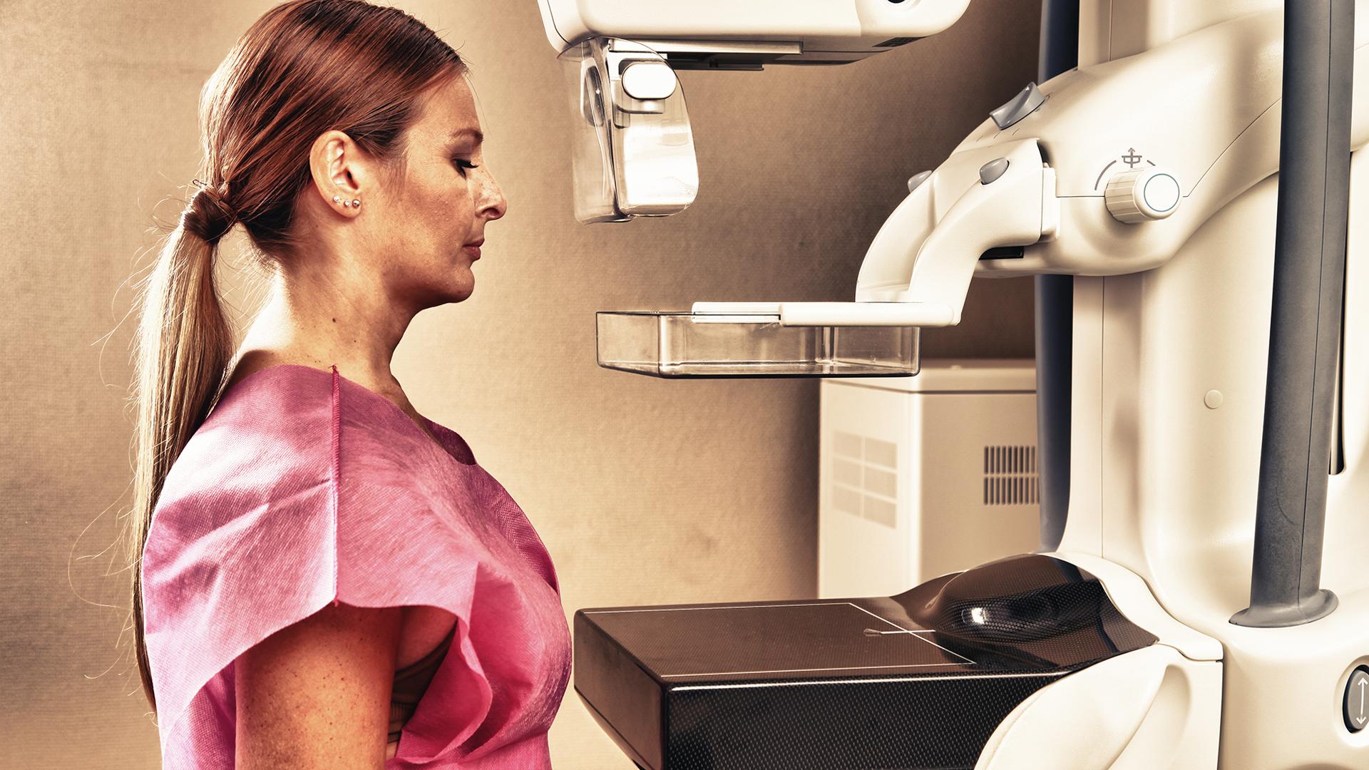 02.Mammograms 101