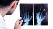 03.Diagnosing Rheumatoid Arthritis