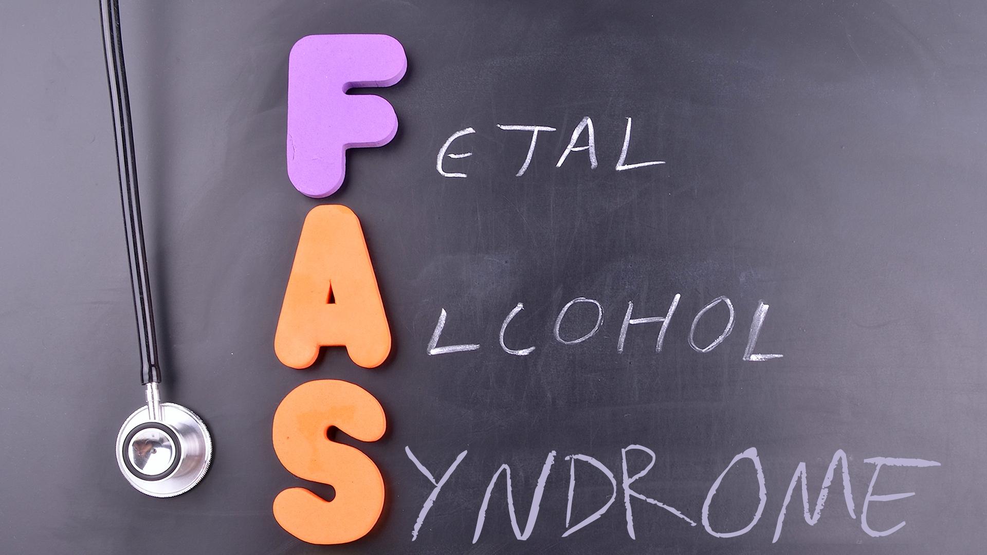 05.Fetal-Alcohol-Syndrome