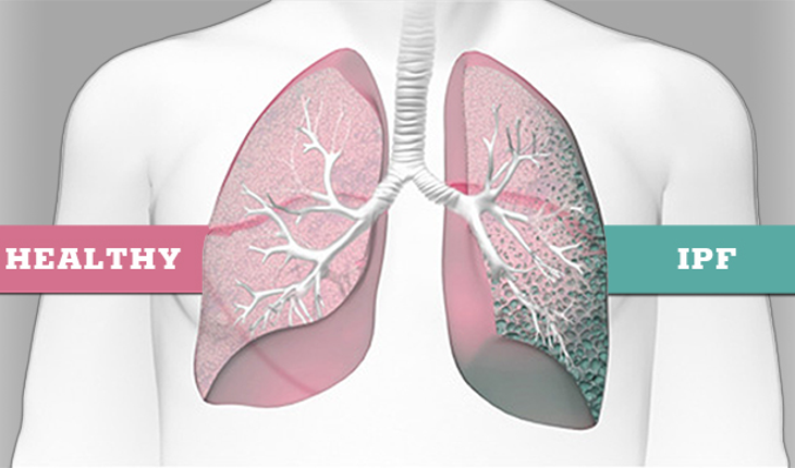 What is idiopathic pulmonary fibrosis, or IPF?
