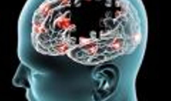 Alzheimers-brain_0