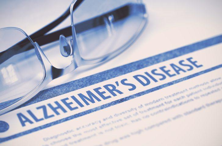alzheimers-information