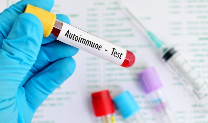 autoimmune-disease-test
