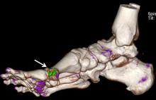 CT-Scan-Gout2.jpg