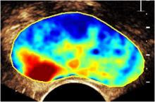 CUDI_image_prostate_02.jpg