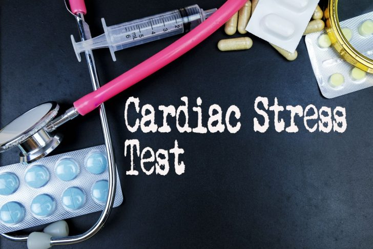 Cardiac stress test equipment