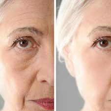 collagen effect on aging skin