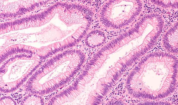 colon-adenoma