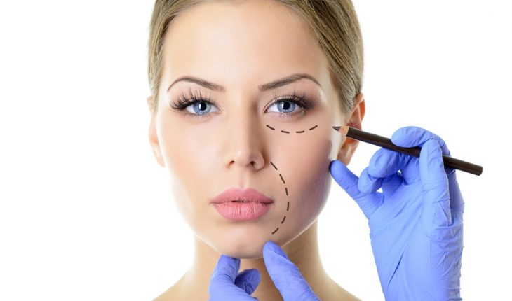 cosmetic-surgery-patient-lines-on-face