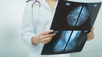 Diagnosing_Cancer_101817.jpg