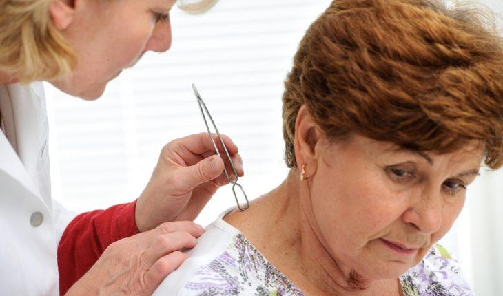 doctor-treating-enior-lyme-disease-patient