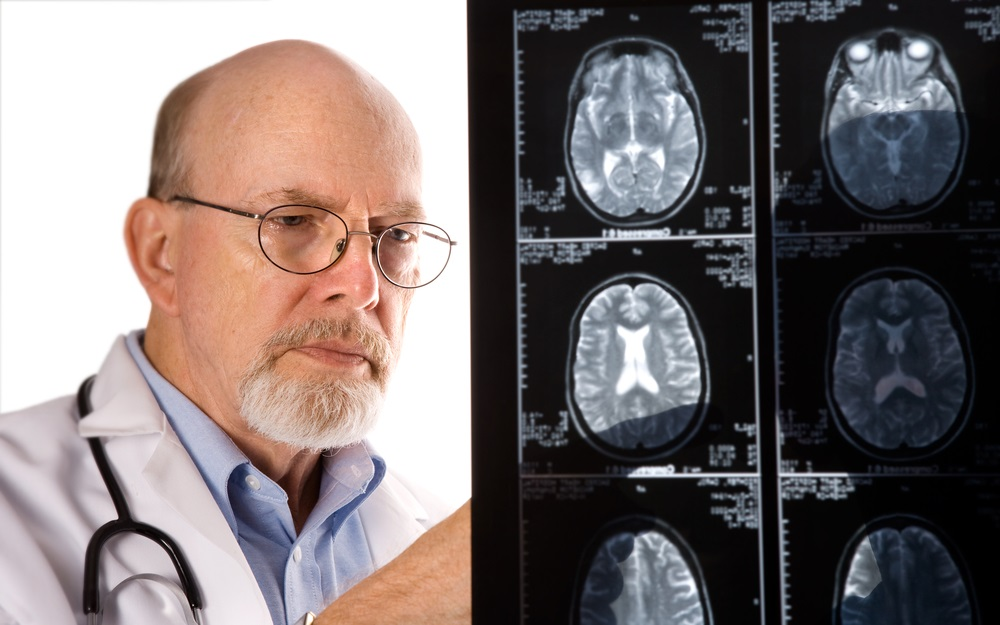 doctor-with-mri-scan