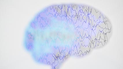 Epilepsy_120517.jpg