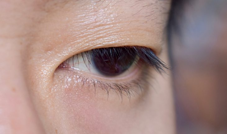 eyelid-closeup
