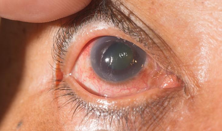 glaucoma-exam