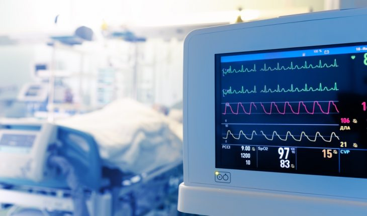 heart-monitor-in-hospital