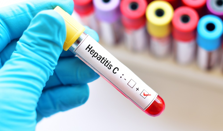 hepatitis-c-blood-samples