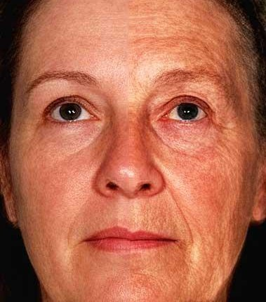 Older Woman Face