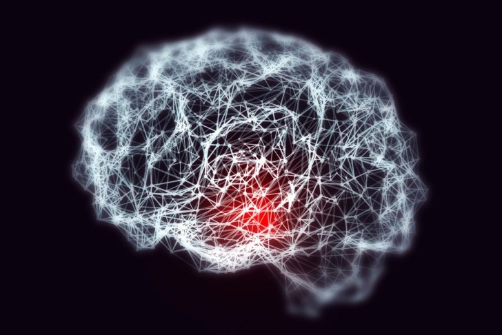 Image of brain showing dementia (red section)