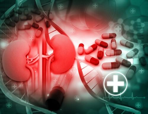 KidneyCancer