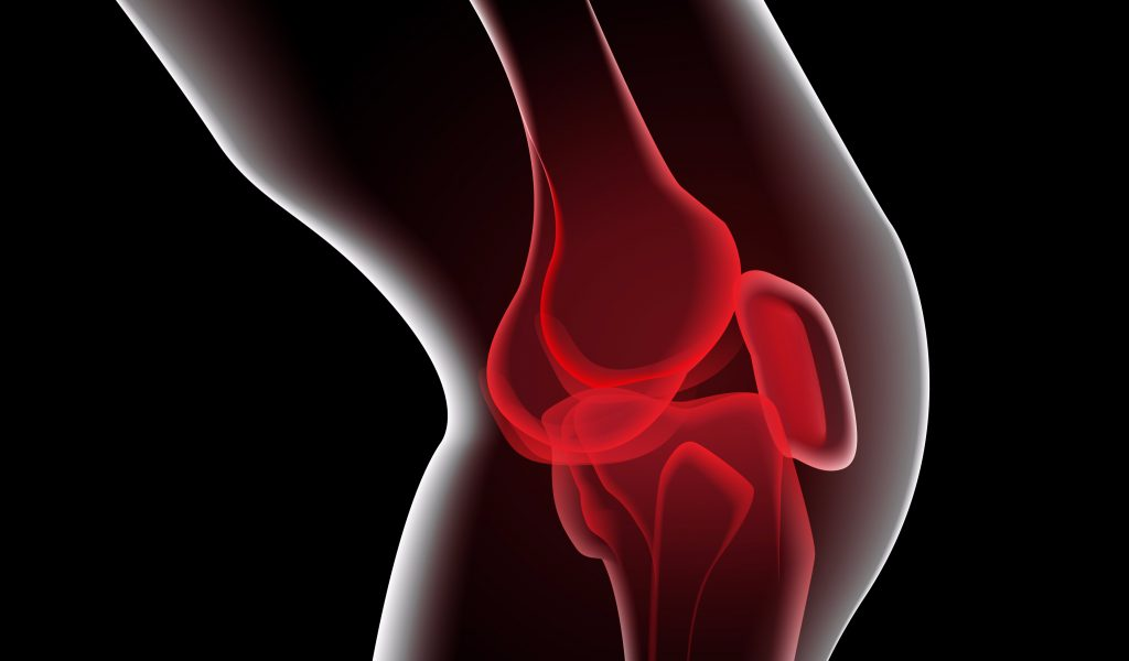 Knee-Pain-1024x600-c-default