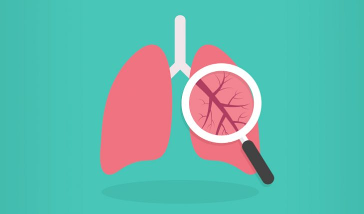 detecting lung cancer