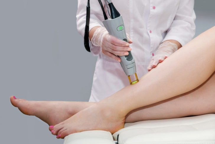 laser-leg-hair-removal