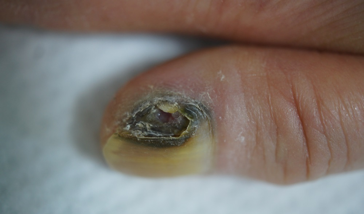 melanoma-of-the-nail