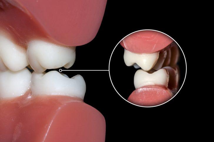 Dental,Occlusion,Molars,Teeth,Close,Up