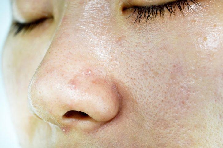 oily-nose-acne