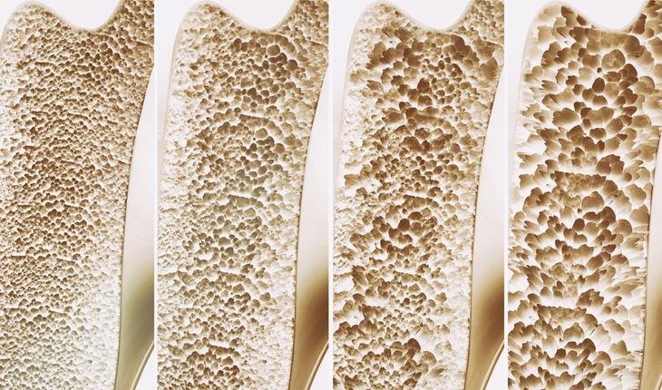 osteoporosis-bone-deterioration