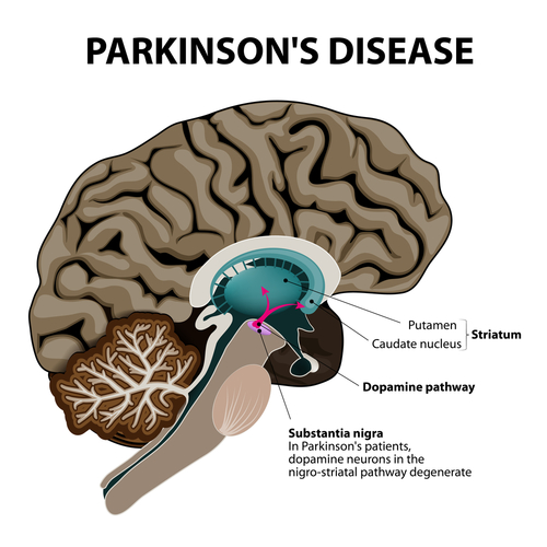 Parkinson's graphic.jpg
