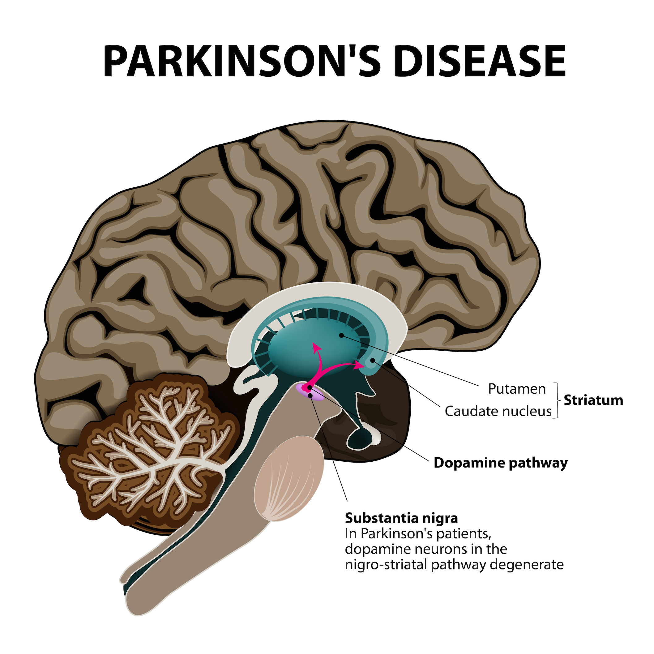 Parkinson's image resized.jpg