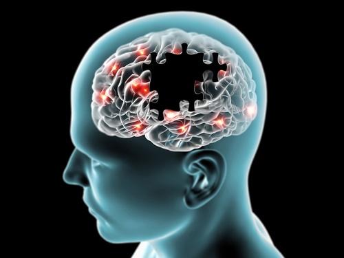 Parkinsons-cells.jpg