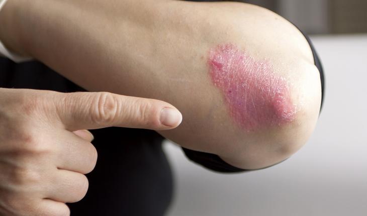 psoriasis-elbow