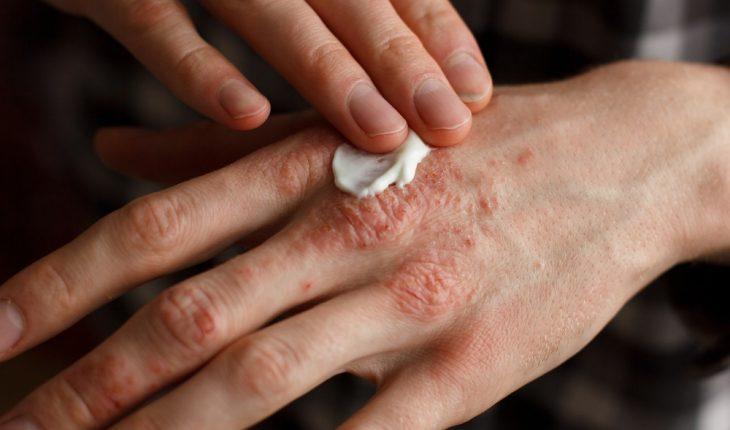 psoriasis-hand