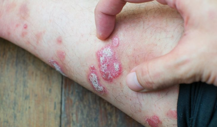 psoriasis-patches