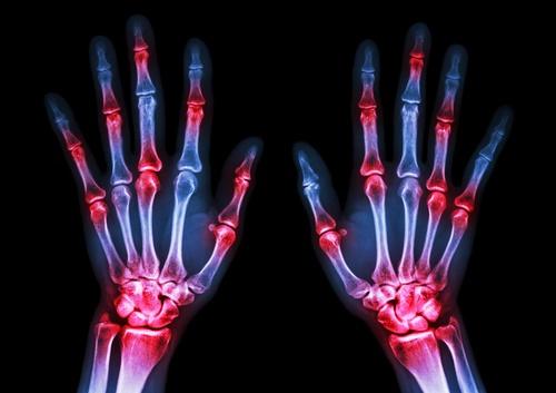 Rheumatoid-arthritis.jpg