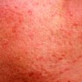 Rosacea skin