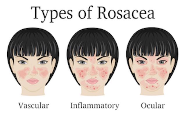 rosacea types 2