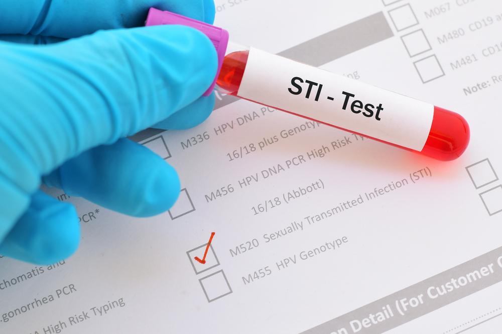 STI test