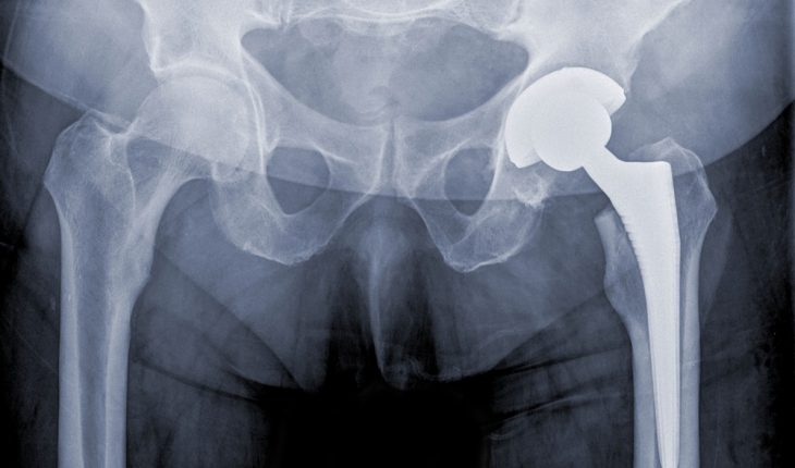 traditional, successful hip replacement