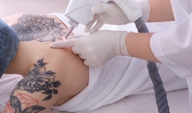 woman-getting-tattoos