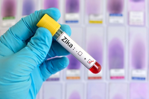 Zika-test-tube