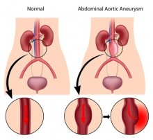 abdominal aneurism