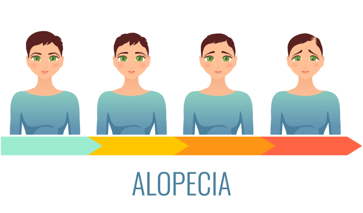 alopecia-hair-loss