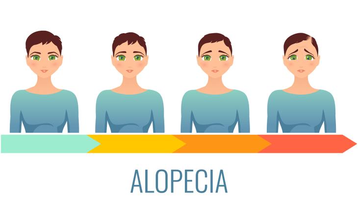 alopecia-hair-loss