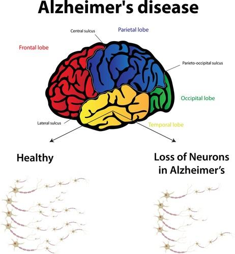 alzheimersdiagram.jpg